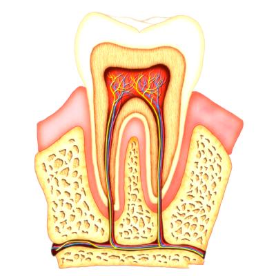 Zahnwurze